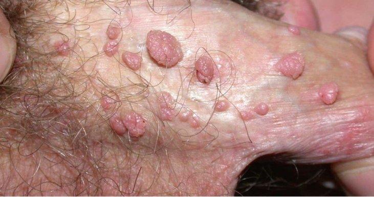 Virus del papiloma en ano, Hpv all ano